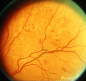 ETDRS Early Treatment of Diabetic Retinopathy Study